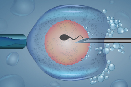 What Is In-Vitro-Fertilization (IVF)?